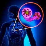 COPD - Doença pulmonar obstrutiva crônica ilustração royalty free