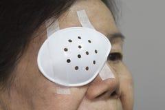 Copertura dello schermo dell'occhio dopo la chirurgia della cataratta immagine stock