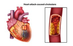 Coração-ataque ilustração stock