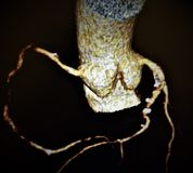 Coração atherosclerotic das embarcações das mudanças da angiografia imagens de stock