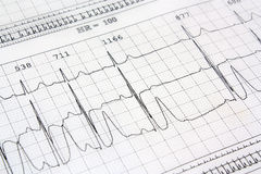 Coração do ekg do eletrocardiograma Fotos de Stock Royalty Free