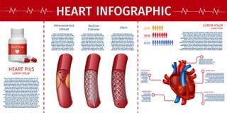 Coração e página cardiovascular de Infographic da terapia ilustração do vetor