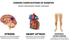 Coração e doenças do vaso sanguíneo Imagens de Stock Royalty Free