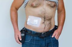 Corazón artificial LVAD, fotos de archivo
