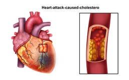 Corazón-ataque stock de ilustración