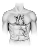 Corazón - bomba artificial Imágenes de archivo libres de regalías