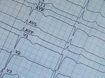 Corazón del pulso del electrocardiograma fotos de archivo