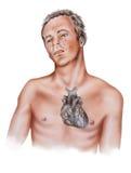 Corazón - síntomas del ataque del corazón Imágenes de archivo libres de regalías