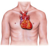 Corazón - sobrepuesto en el torso masculino, inflamado imagen de archivo