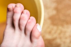 Corn or clavus on female foot. Applying ointment on the blisters. stock images