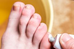 Corn or clavus on female foot. Applying ointment on the blisters. royalty free stock photo