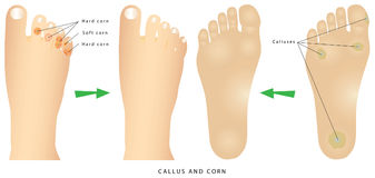 Corns and calluses Royalty Free Stock Photography