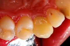 Coroa cerâmica no dente Imagens de Stock