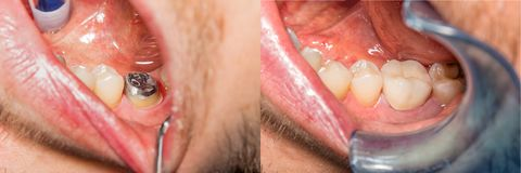 Coroa do dente no modelo do emplastro da maxila humana Close-up macro do foto de stock