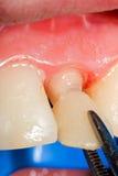 Corona temporal para el diente Imagen de archivo