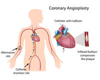 Coronary angioplasty. Procedure to widen blood vessels in the heart Royalty Free Stock Photo