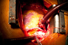 Coronary artery bypass grafting Royalty Free Stock Photo