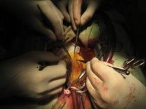 Coronary artery bypass surgery. Surgery for coronary artery heart disease using heart-lung machine Stock Photo