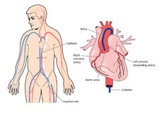 Coronary artery catheter Royalty Free Stock Photos