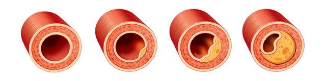 Coronary Artery Disease. Progression of Coronary artery disease Royalty Free Stock Photography
