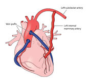 Coronary artery grafts. Using veins and the left internal mammary artery Royalty Free Stock Photography