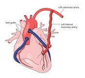 Coronary artery grafts Royalty Free Stock Photography