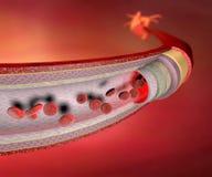 Coronary artery. Normal coronary artery and heart in the background Royalty Free Stock Photography