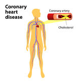 Coronary heart disease. Is a condition in which the heart's arteries become narrower. coronary artery disease. human vascular system on silhouettes of men Royalty Free Stock Image