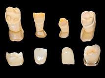 Coronas de cerámica dentales Fotos de archivo