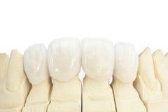 Coronas dentales de cerámica libres del metal Foto de archivo