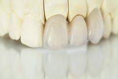 Corone dentarie ceramiche libere del metallo Immagini Stock Libere da Diritti