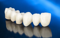 Corone dentarie ceramiche libere del metallo Fotografie Stock
