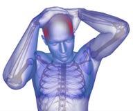 Corpo con l'emicrania visibile Immagini Stock