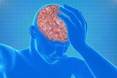 Corpo con l'emicrania visibile Fotografie Stock Libere da Diritti