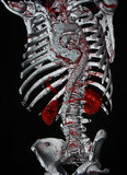 Corpo CT Immagini Stock Libere da Diritti