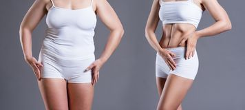 Corpo del ` s della donna prima e dopo perdita di peso su fondo grigio immagine stock