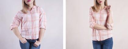 Corpo della ragazza prima e dopo l'eccesso di dieta fotografia stock