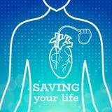 Corpo dello stimolatore cardiaco di cuore Fotografia Stock