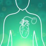 Corpo dello stimolatore cardiaco di cuore Fotografia Stock Libera da Diritti