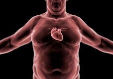 Corpo humano, pessoa gorda, coração ilustração royalty free