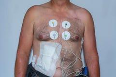 Corps supérieur d'un homme avec des électrodes d'ECG Image libre de droits