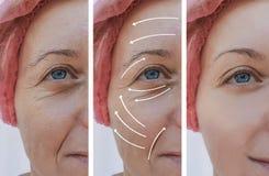 Correção antes e depois dos procedimentos, seta dos enrugamentos da cara da pele da mulher imagem de stock royalty free
