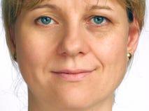 Corrección de arrugas en la mitad de la cara Imagen de archivo libre de regalías