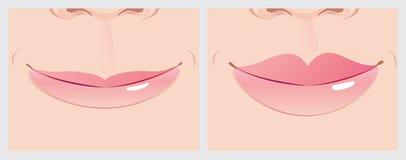 Corrección de los labios ilustración del vector