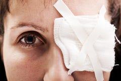Corrección del yeso en ojo de la herida Imagen de archivo