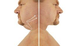 Corrección masculina de la barbilla doble antes y después de procedimientos del tratamiento imagen de archivo libre de regalías