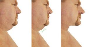 Corrección masculina de la barbilla doble antes y después de procedimientos del tratamiento que ceden fotos de archivo libres de regalías