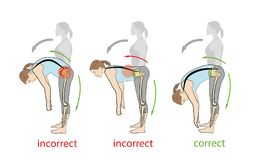 Correct and incorrect tilt forward. medical recommendations. backache problems. vector illustration. Royalty Free Stock Images