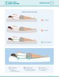 Correct sleeping ergonomics and mattress selection. Correct sleeping ergonomics and body posture, mattress and pillow selection infographic Royalty Free Stock Photography