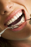 Correcting device on teeth. Opened mouth with correcting device on teeth Royalty Free Stock Photo